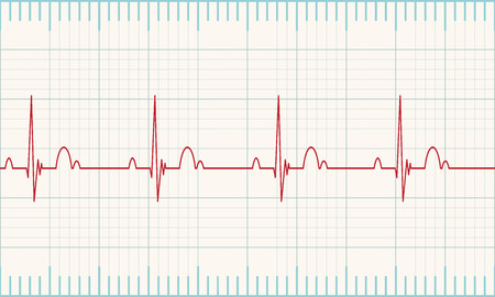 heart ekg trace: Medical heart monitor measuring heartbeat rate with white background. Vector illustration Eps 10