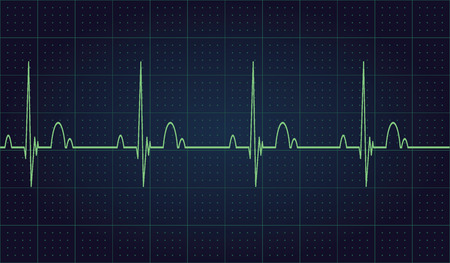 Medical heart monitor measuring heartbeat rate with blue background. Vector illustration Eps 10 Vettoriali