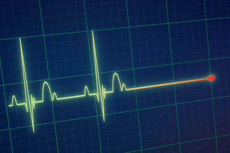 Flatline blip on a medical heart monitor ECG / EKG (electrocardiogram) with blue background
