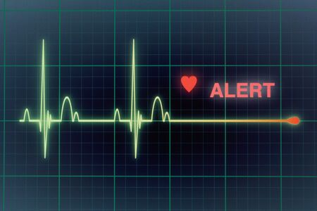Flat line alert on a heart monitor.