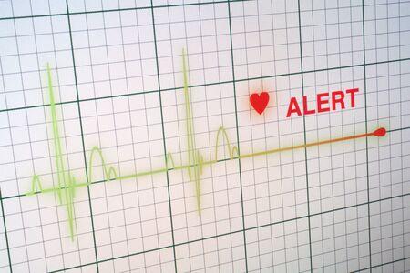 signos vitales: Alerta línea plana en un monitor de corazón.
