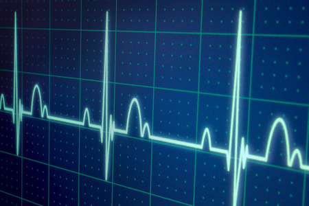 Flatline blip on a medical heart monitor ECG  EKG (electrocardiogram) with blue background photo