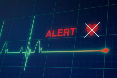 Flat line alert on a heart monitor.