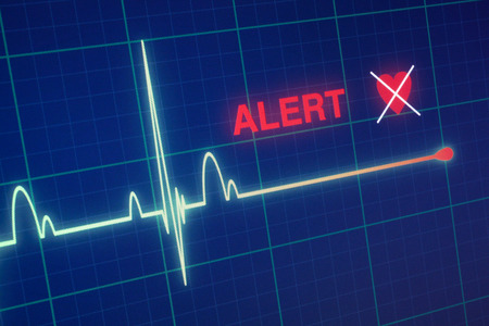Flat line alert on a heart monitor. Stock Photo - 40334951