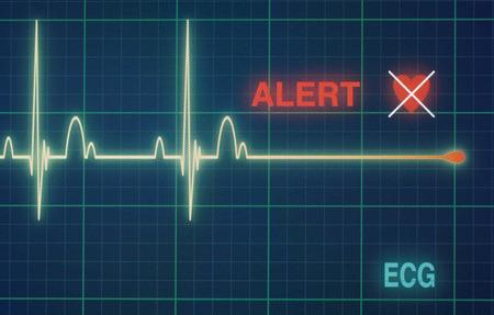 Alerte ligne plat sur un moniteur cardiaque.
