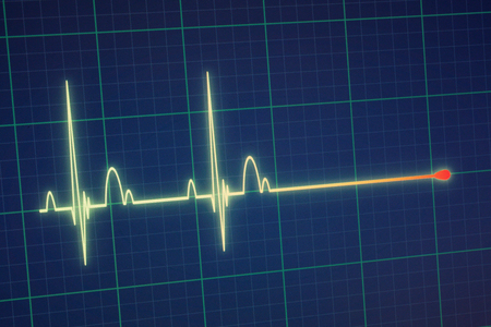 Flatline blip on a medical heart monitor ECG / EKG (electrocardiogram) with blue background Stock Photo - 60947611