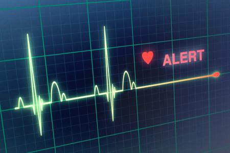heart monitor: Flat line alert on a heart monitor.