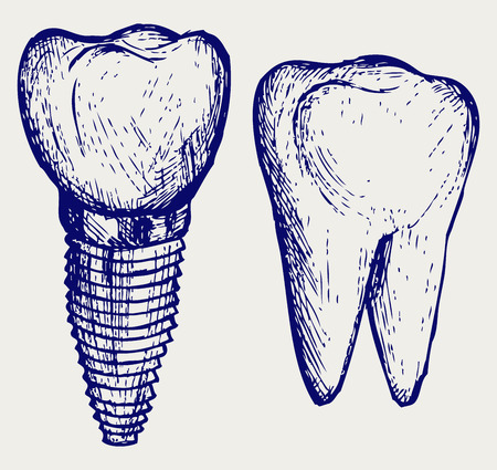 Tooth implant and molar. Doodle style Vector