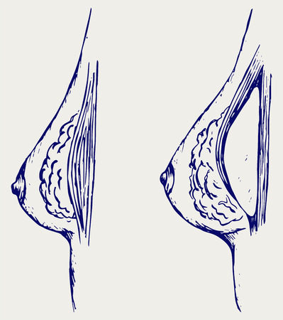 breast implant: Plastic surgery. Breast implant. Doodle style