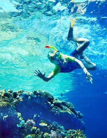 actinia: Grupo de peces de coral en el buceador water.Scuba azul.