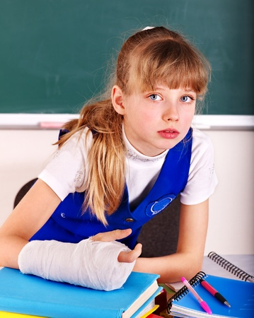 fracture arm: Child with broken arm in classroom. Stock Photo