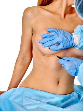 seni: la chirurgia mastoplastica additiva. Medico fa linea tratteggiata sulla seduta corpo della donna. Isolato. Archivio Fotografico