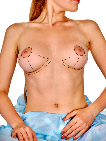 breast examination: Augmentation breast surgery. Female patient sitting with dotted line on nude body. Stock Photo
