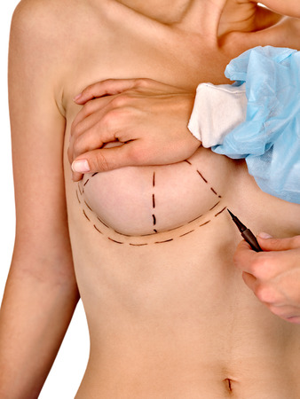 female breast: Breast cancer surgery. Doctor makes of pen dotted line on female nude body.