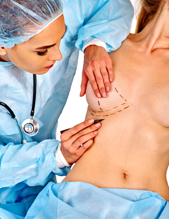 Augmentation breast cancer surgery. Female doctor makes dotted line on female body on isolated. Stock Photo