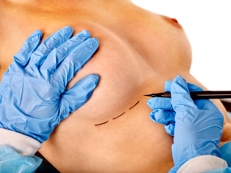 Breast cancer surgery. Doctor makes dotted line on female nude breast  body.