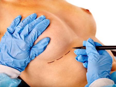 senos: Cirugía de cáncer de mama. El doctor hace la línea de puntos en el cuerpo del pecho desnudo femenino.