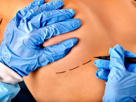 senos: Cierre de la cirugía de cáncer de mama. El doctor hace la línea de puntos en el cuerpo femenino.