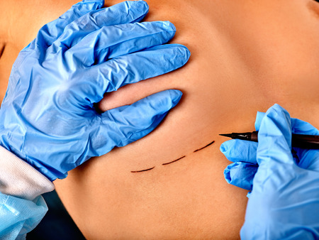 Close up breast cancer surgery. Doctor makes dotted line on female body.