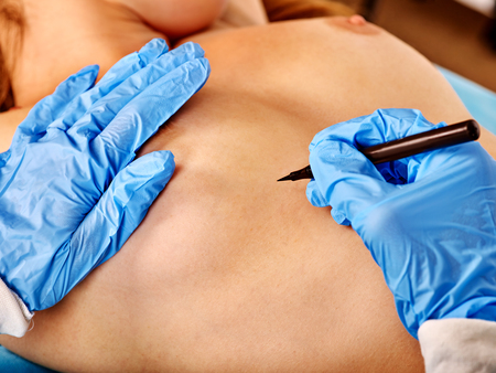 nude breast: Close up of breast augmentation surgery. Doctor makes dotted line on female body. Stock Photo