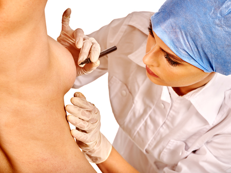 nude breast: Breast cancer surgery. Doctor makes dotted line on female body before operation.