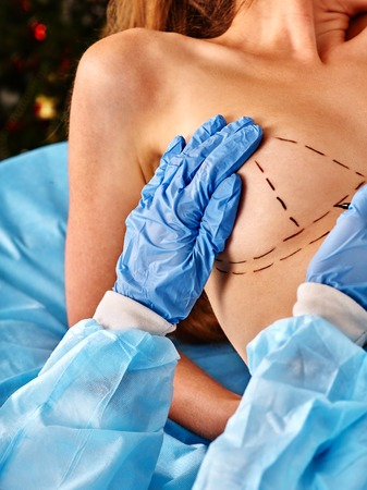 nude breast: Augmentation breast cancer surgery. Doctor makes dotted line on female breast .