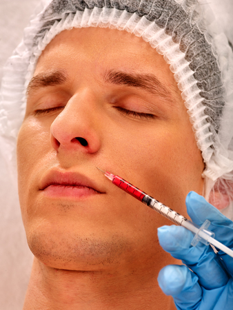 dermal: Filler injection for male forehead face. Plastic aesthetic facial surgery in beauty clinic. Man giving  injections. Close up of doctor in medical gloves with syringe injects nasolabial fold drug