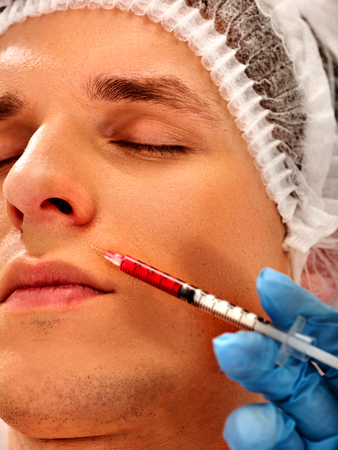 Filler injection for male forehead face. Plastic aesthetic facial surgery in beauty clinic. Botox injections. Cropped shot of doctor in medical gloves with syringe injects nasolabial fold drug. Stock Photo