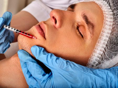 남성이 마 얼굴에 필러 주입. 아름다움 클리닉에서 미적 얼굴 성형 수술. 보톡스 주사. 주사기와 의료 장갑에 의사의 자른 된 총 nasolabial 폴드 약을 주 스톡 콘텐츠