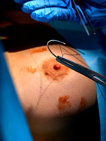 Brustimplantate in der plastischen Chirurgie des Körperteils. Chirurg mit Handschuhen betreibt Damenbrüste zur Augmentation. Doktor, der chirurgische Instrumente in der Klinik hält. Behandlung von Brustkrebs. Standard-Bild - 86328942