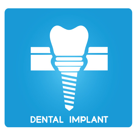 dental implant Иллюстрация