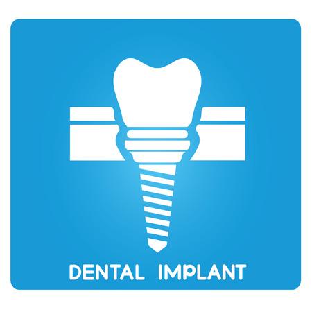 dental research: dental implant Illustration