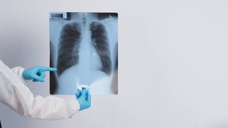 Lungs x-ray film in doctor hands wearing medical gloves and PPE suit which showing scan-film of uncommon respiratory syndrome or pneumonia disease or unhealthy-lung that infected by Coronavirus or Covid-19