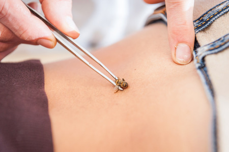 Apitherapy treatment, showing a bee being held with forceps