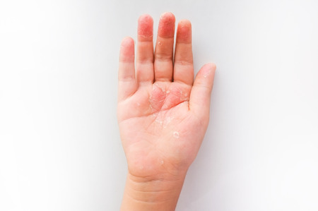 Peeling Skin on childrens hand Фото со стока