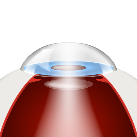 Simple Intraocular Lenses Implantation Model.