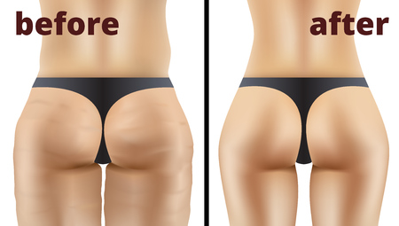 Morbid Obesity Liposuction Before And After Illustration.
