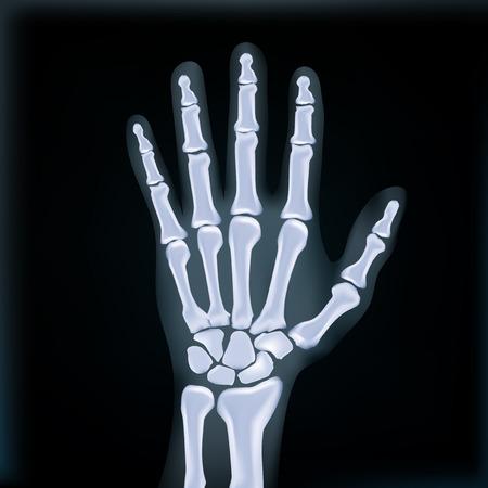 Realistisches medizinisches Röntgenbild der Hand. EPS10 Vektor Vektorgrafik
