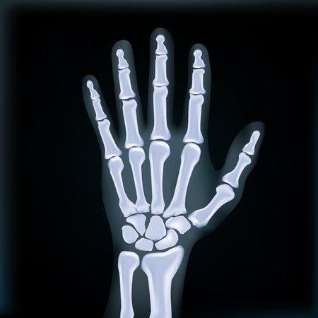 Realistic X-ray Hand Medical Image. EPS10 Vector