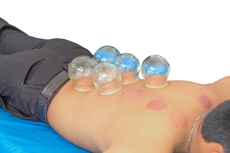 cupping glass cupping: Fire Cupping  Removal  therapy of Glass Globe in