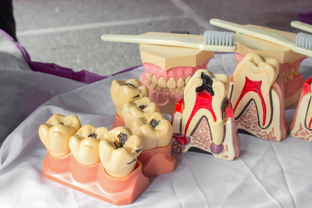 artificial model: upper denture plastic on a  model on a table Stock Photo