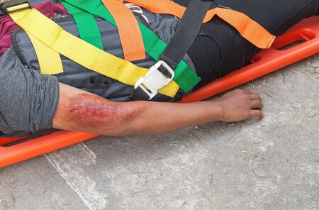 paciente en camilla: patient Injury upper arm,Wait physician assist patient in emergency rescue situations, stretcher for people with neck or back injuries , example of medical equipment using to transport patient. (accident victim)