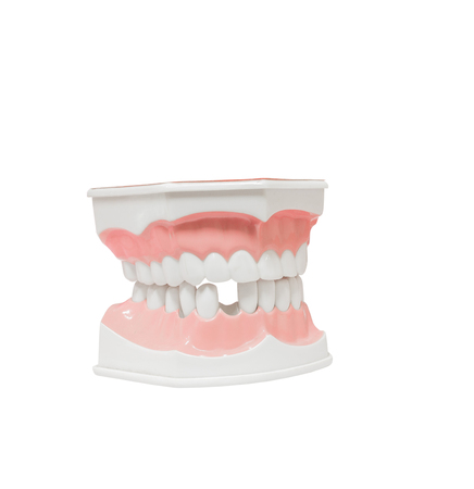 carious: Dental Model of Teeth , and broken tooth , Isolated on white background clipping path Stock Photo