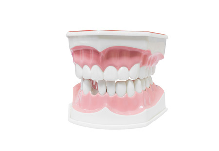 carious: Dental Model of Teeth Stock Photo