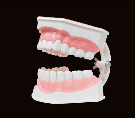 carious: Dental Model of Teeth Open mouth, Isolated on black background clipping path Stock Photo