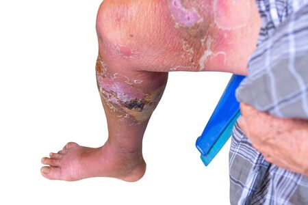 Erysipelas bacterial infection Under the skin leg aged people On  white background 版權商用圖片
