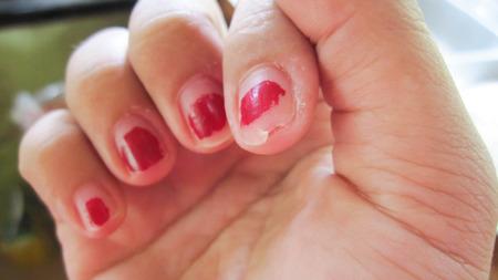 섬세하고 모양이 좋지 않고 아름다운 네일 스킨이 없으므로 손톱이 찢어져 내부 및 외부 건강을 돌 보지 못하게됩니다. 스톡 콘텐츠