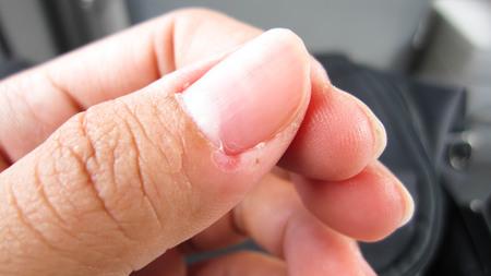 Nails rasgados que não se importam com delicado, sem forma e não têm uma linda pele de unha, indica não cuidar da saúde interna e externa.