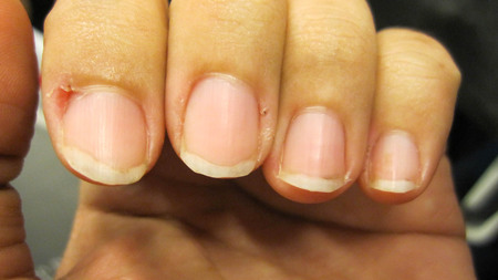 Nails ripped that do not care for delicate, no shape and do not have beautiful nail skin, indicates not to take care of both internal and external health.