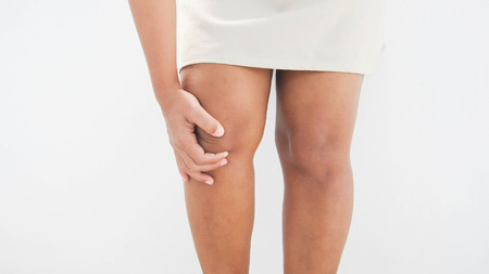 knee pain due to obesity. Stock Photo